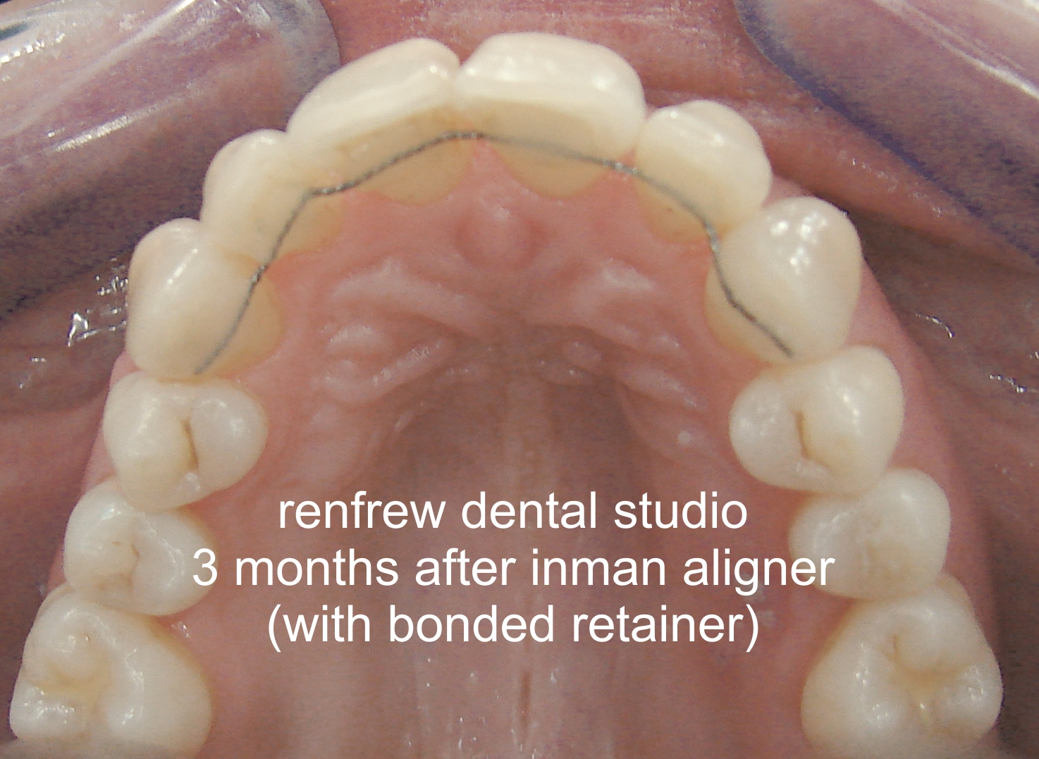 aligned teeth