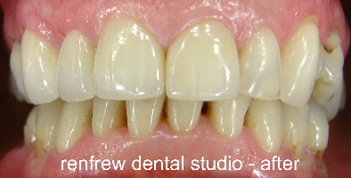 crowns and tooth whitening